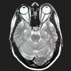 MRI skull cross section normal finding