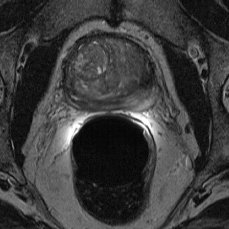 MRI prostate gland cross section benigne prostatic hyperplasia