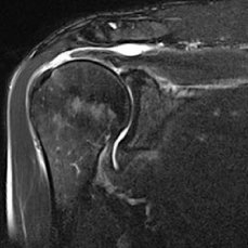 MRI shoulder joint frontal rupture of the rotator cuff