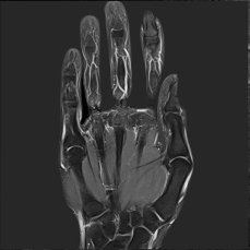 MRI hand frontal normal finding