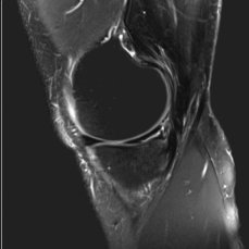 MRI knee joint lateral meniscal tear