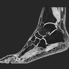 MRI foot lateral normal finding