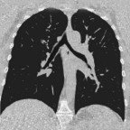 CT Lunge frontal (low-dose) Normalbefund